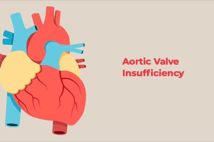 Aortic Valve Insufficiency